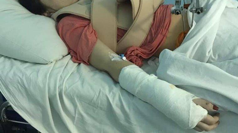Стало известно о состоянии пострадавшей в ДТП на остановке в Киеве