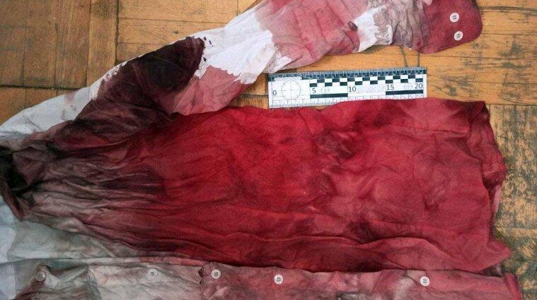На Рівненщині чоловік порізав свого кума після хрестин - фото