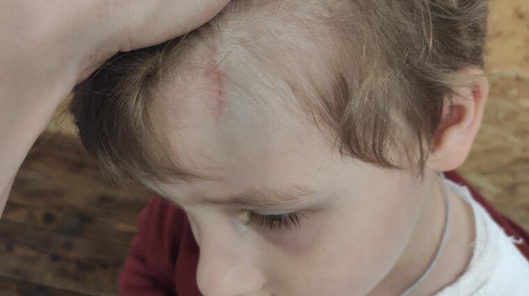 """В """"Епіцентрі"""" на хлопчика впала шафа: у нього перелом ключиці та забій голови - фото"""
